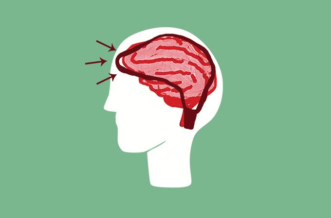 ilustração de cérebro envolto por um dispositivo