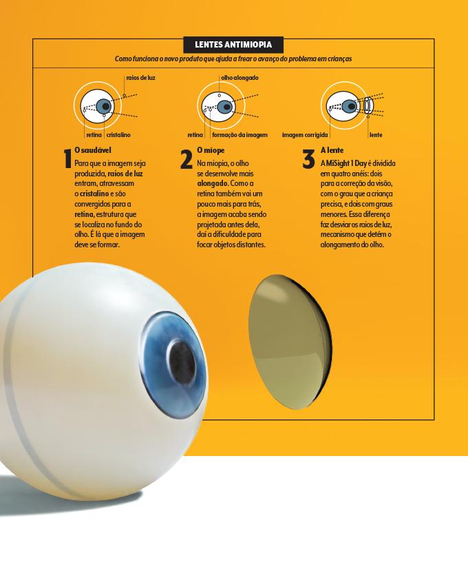 Esquema passo a passo de como funcionam as lentes de contato que tratam miopia em crianças