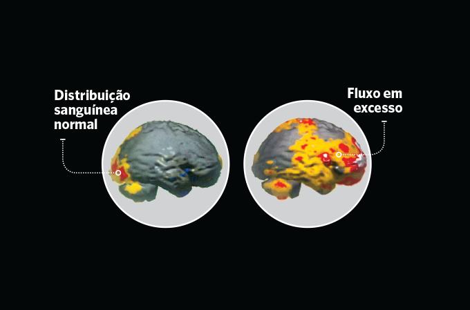imagens do cérebro