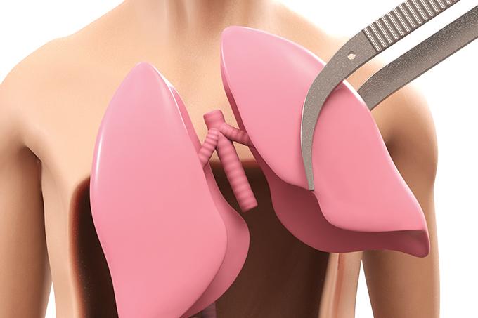 transplante de pulmão