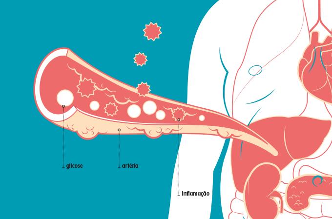 ilustração de moléculas inflamatórias pelas artérias