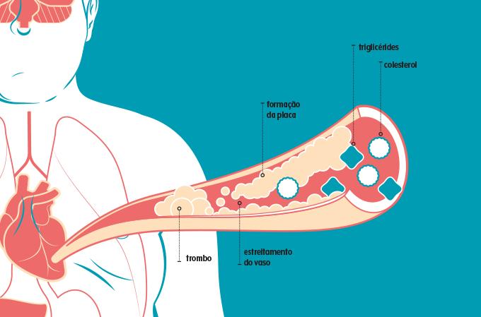 ilustração de formação de placa e trombos na artéria
