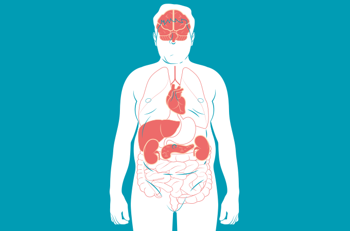 o que é síndrome metabólica